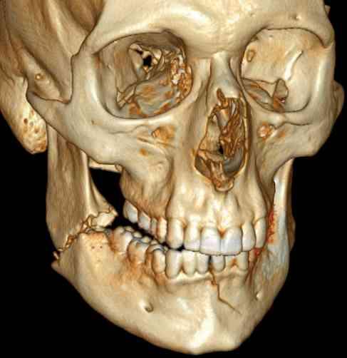 dentisti-estero-tac-3d-conebeam
