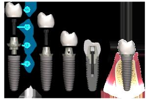 impianti-dentali-protesi-avvitata