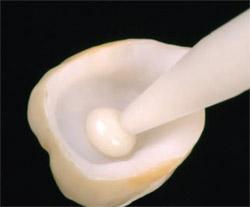 protesi-dentali-cementate