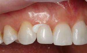 cementazione-protesi-dentali