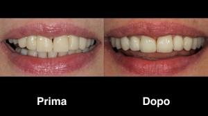 dentisti croazia