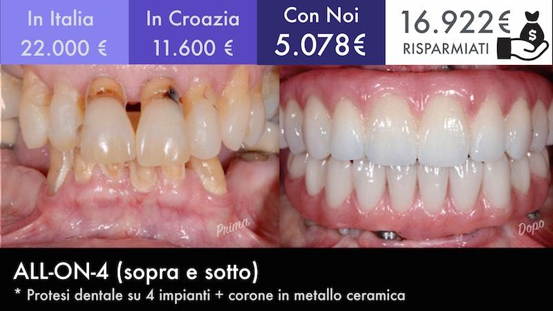 prezzi-turismo-dentale
