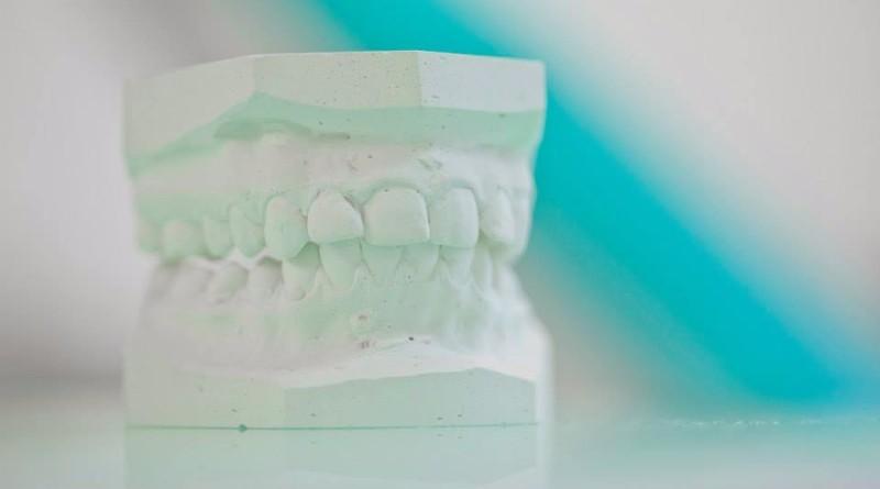 dentista-zagabria-Studio-dentistico-Slade-9