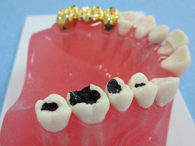 denstista-zagabria-Studio-dentistico-DentalSaurus-6