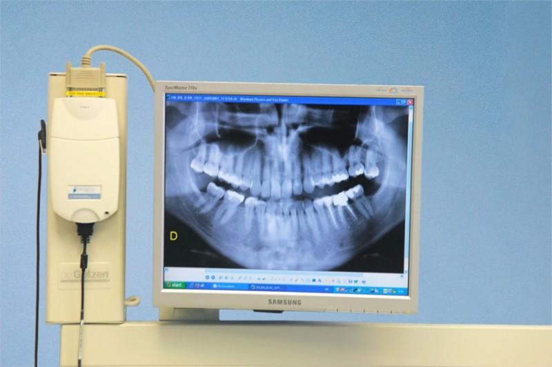 dentisti-fiume-Studio-dentistico-Crljen-8