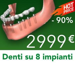 Denti-8-Impianti