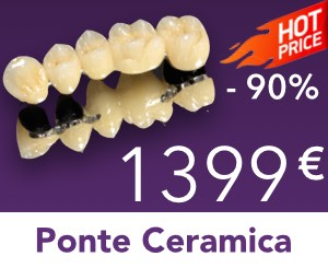 Ponte-Metallo-Ceramica