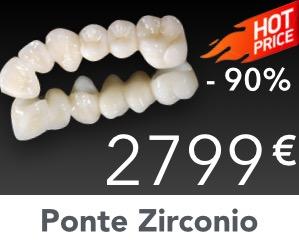 Ponte-Zirconio-Ceramica