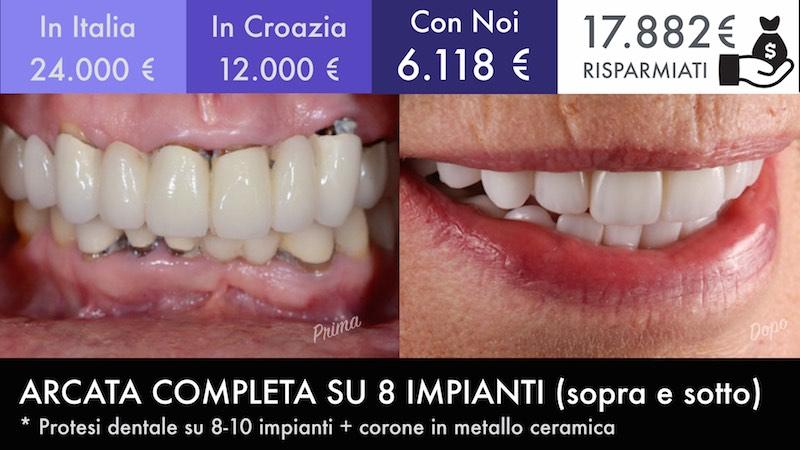 Turismo Dentale Moldavia 5
