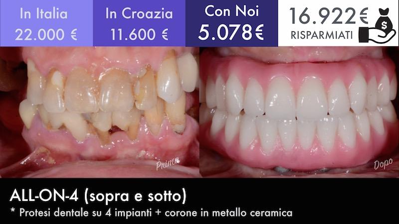 Turismo Dentale Moldavia 6